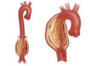 Атеросклероз аорты и ее ветвей что это