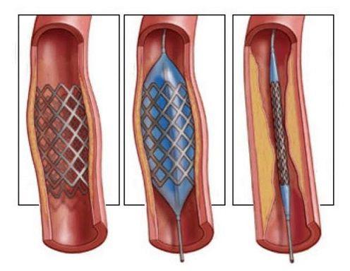Артериальное стентирование