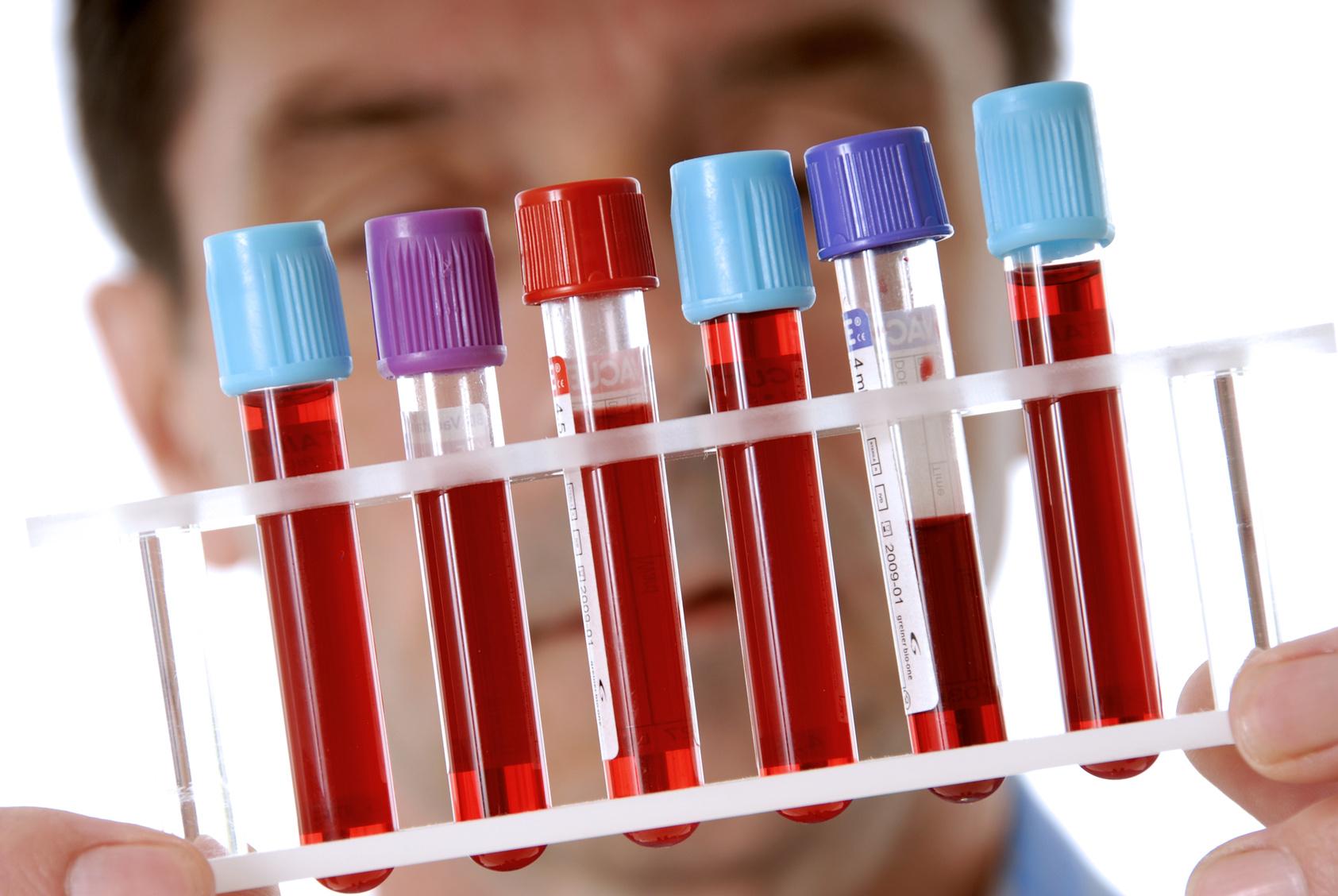 Биохимический липидный анализ