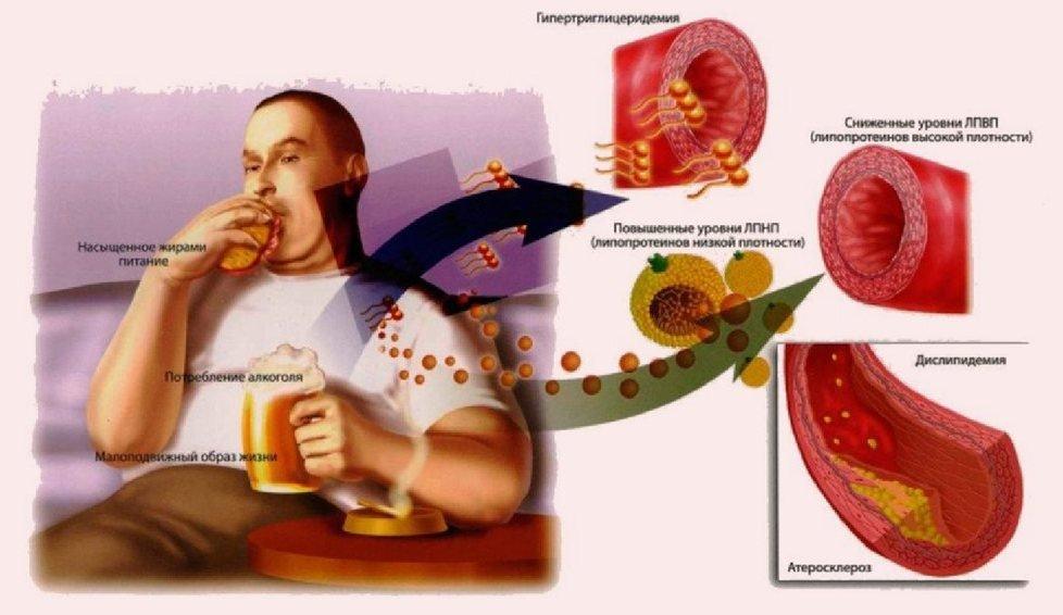 Гипертриглицеридемия