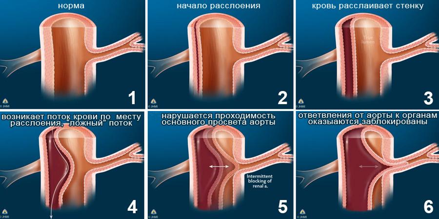 Отслоение аорты