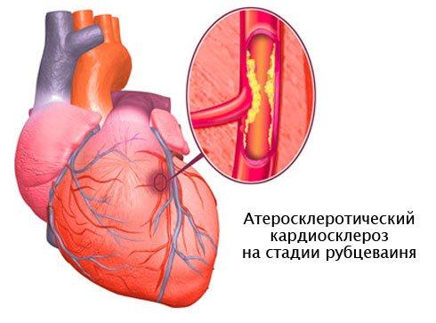Развитие кардиосклероза