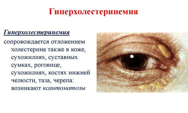 Симптомы гиперхолестеринемии
