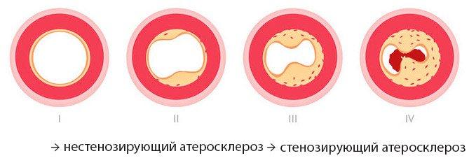 Стенозирующий и нестенозирующий атероклероз