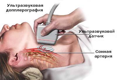 УЗИ с допплером по исследованию артерий шейного отдела