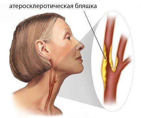 атеросклеротические отложения в брахиоцефальных артериях