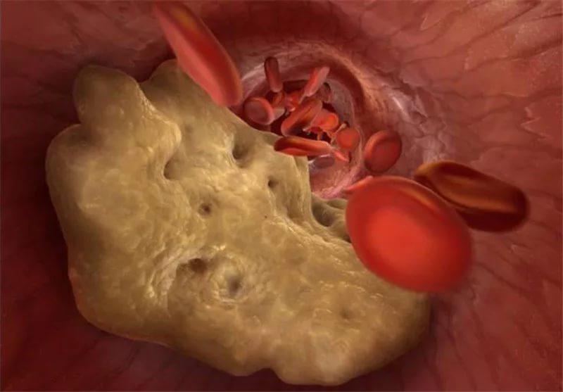 количества в крови холестерина может меняться