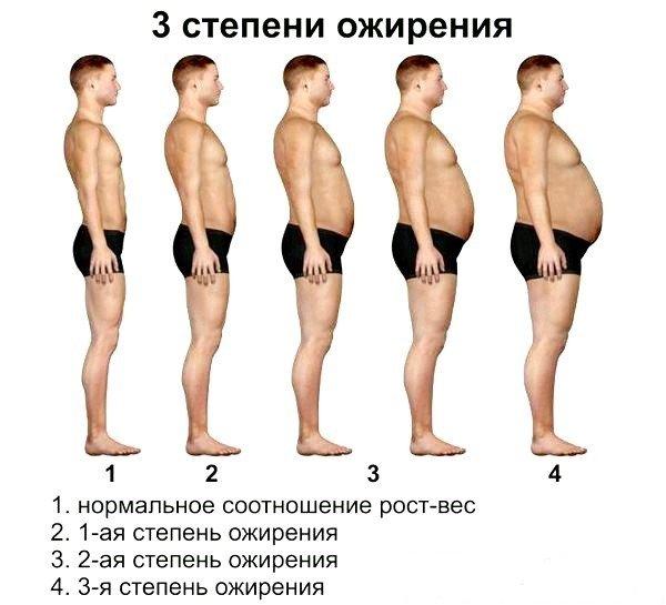 3 степени абдоминального ожирения
