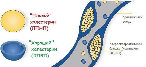 Атерогенность холестерина зависит от того, к какому классу липопротеидов он принадлежит