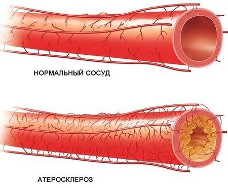 Проявляется симптоматика атеросклероза