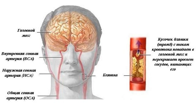 Брахиоцефальная артерия