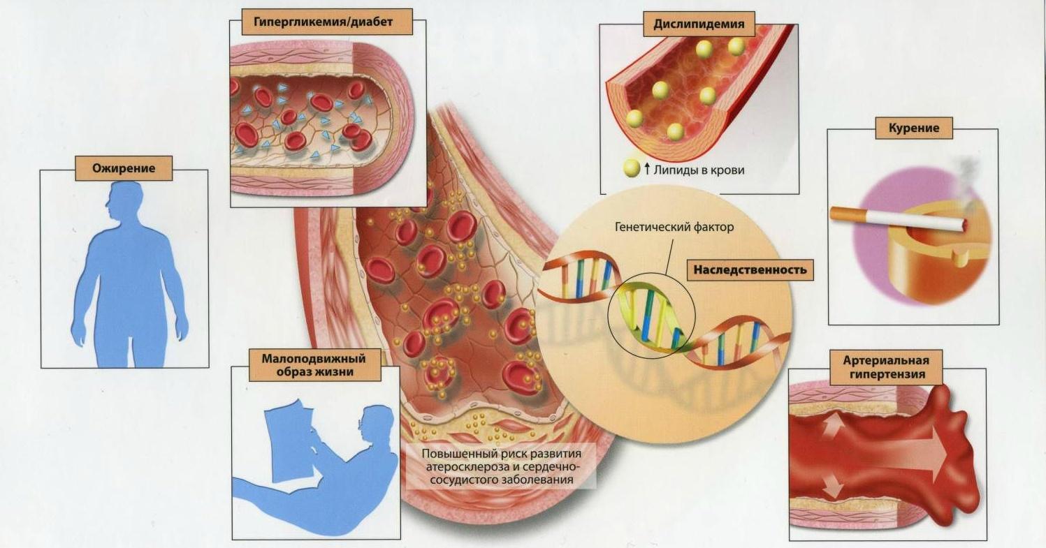 Факторы провокаторы сердечного склероза
