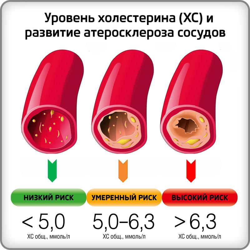 Уровень холестерина и развитие атеросклероза