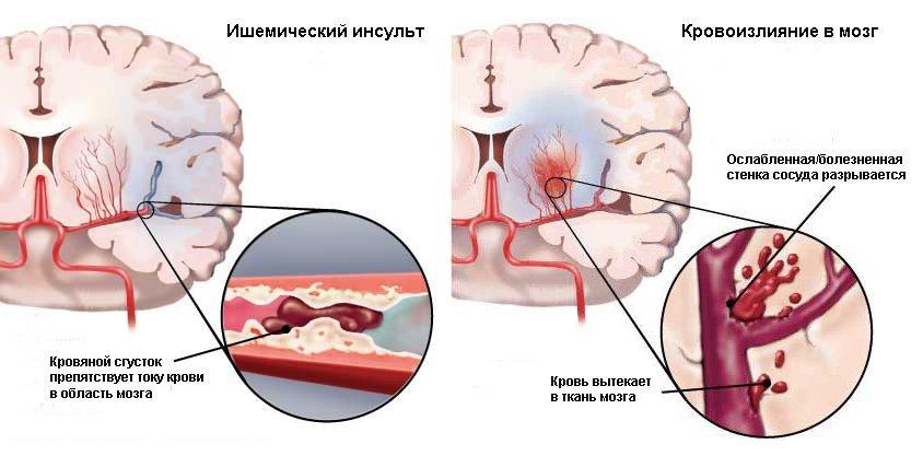 Инсульт и кровоизлияние