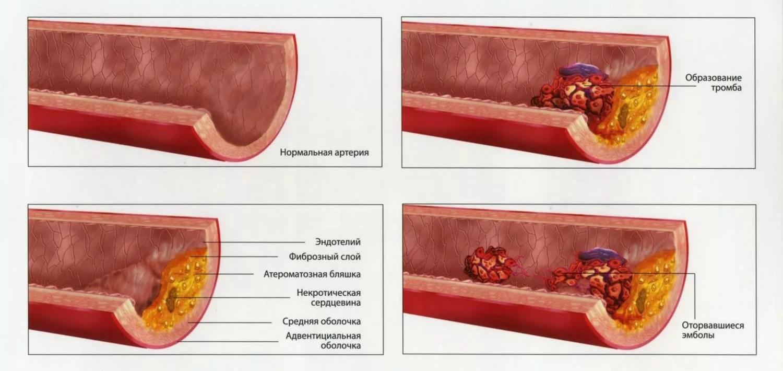 Механизм действия болезни
