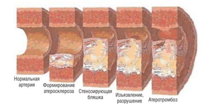 Стадии образования бляшек