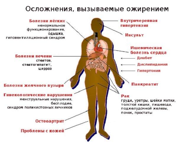 Осложнения вызываемые ожирением