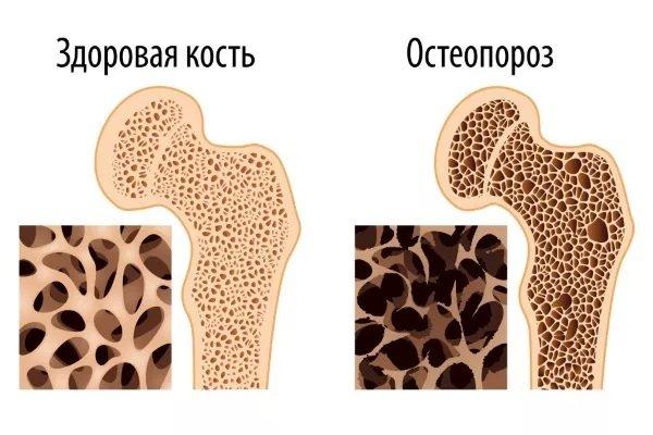 Остеопороз характеризуется повышенной ломкостью костей