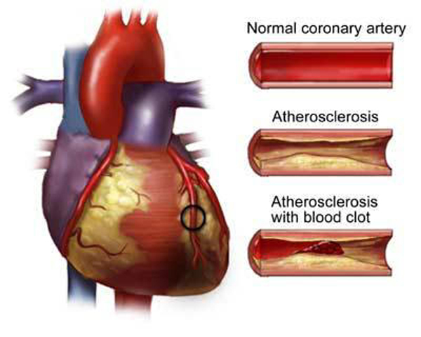 Отложение холестерина – причина развития заболеваний сосудов и сердца.