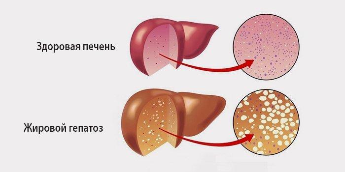 Ожирение клеток печени