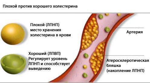 Разница между ЛПНП и ЛПВП.