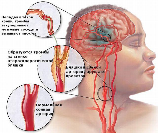 Разновидности атеросклероза сонных артерий