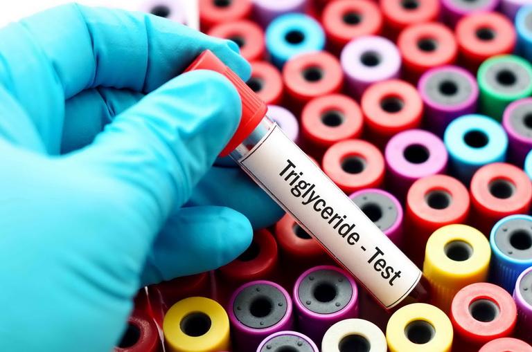 Нормальный показатель триглицеридов в составе крови