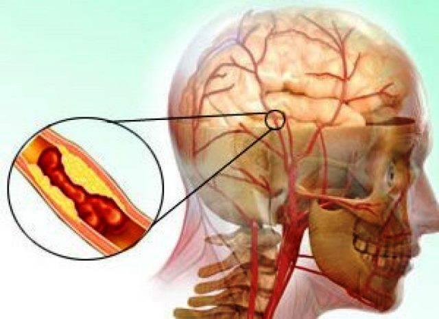 Тромбоэмболия мозговых артерий