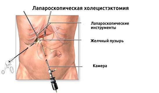 Операция по удалению полипа