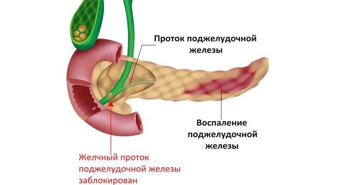 Воспаление в поджелудочной железе
