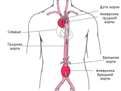 аорта