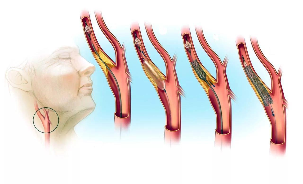 Холестериновая бляшка в сонной артерии