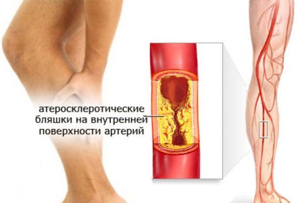 Атеросклеротические бляшки в ноге
