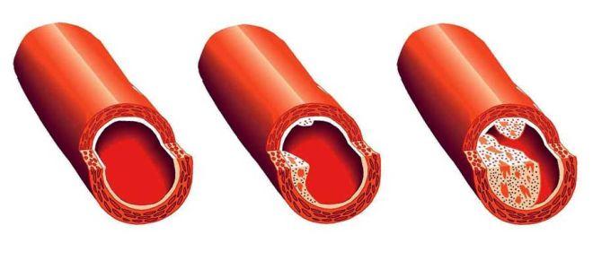 Развитие патологии мультифокальный атеросклероз