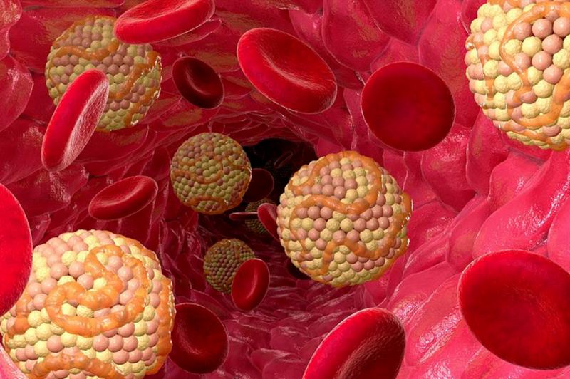 Избыточное количество холестерина откладывается на стенках сосудов