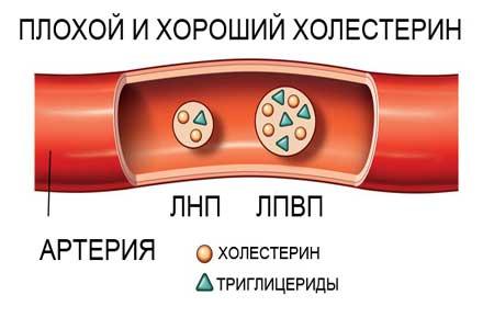 холестерин