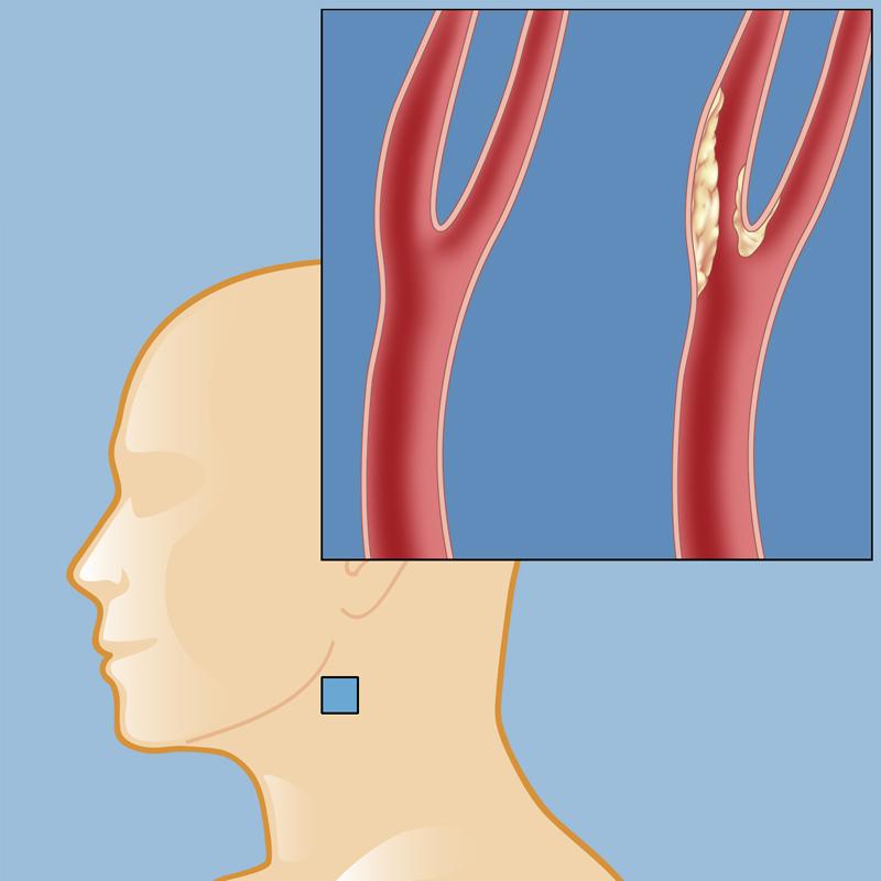 Недостаточное кровоснабжение головного мозга - не единственная опасность склеротической бляшки в шейных сосудах
