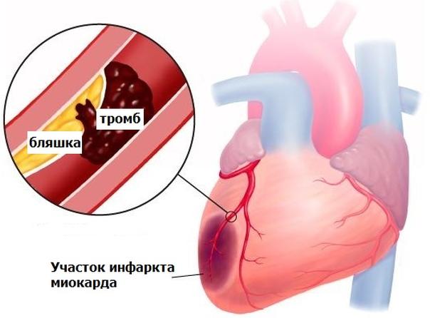 боли в области сердца жгущего или давящего характера