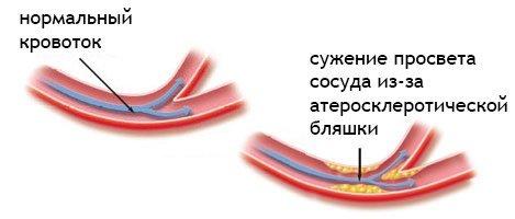 кровоток