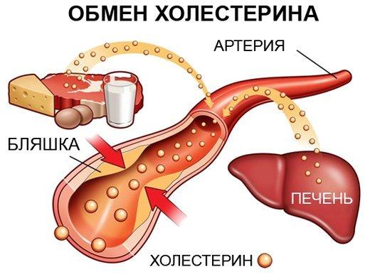 Холестериновые бляшки становятся причиной многих серьёзных патологий