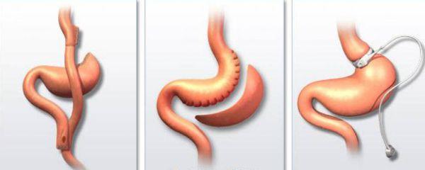 шунтирование и резекция желудка