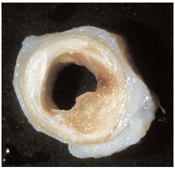 Сосуд, поражённый атеросклерозом
