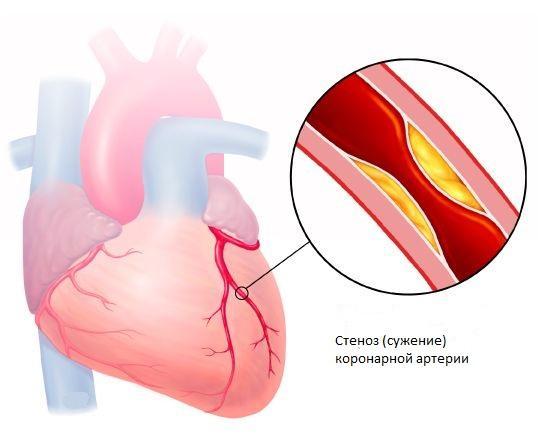 Сердечный приступ напрямую связан с атеросклерозом