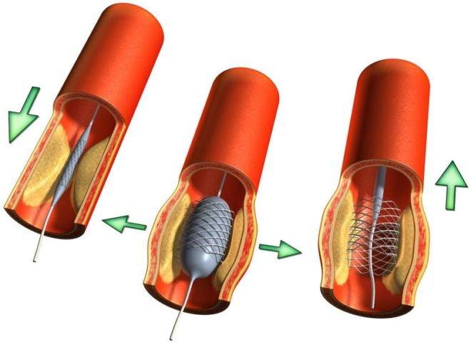 Ангиопластика при помощи введения в артерию баллона