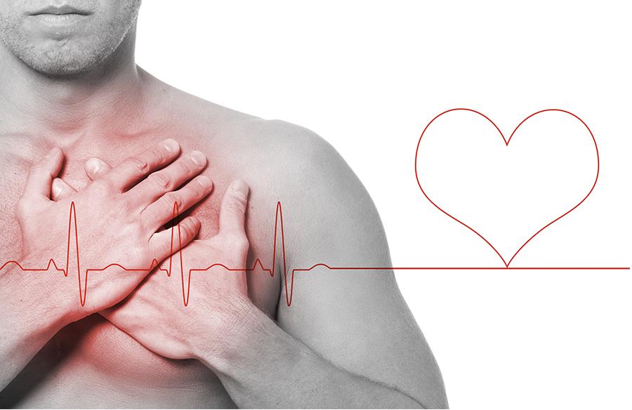 Ишемия сердечного органа