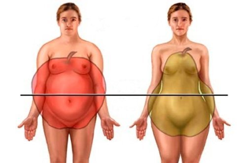 типы ожирения