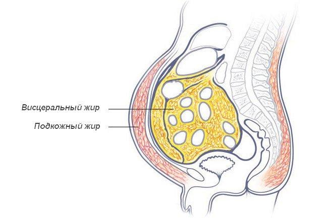 жир накапливается абдоминально по причине эндокринного сбоя