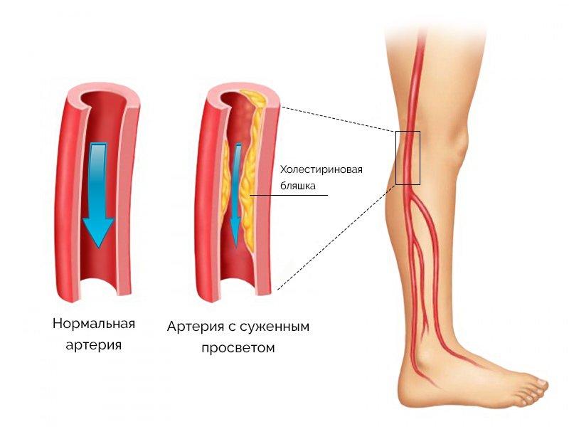 Закупорка в артериях и венах