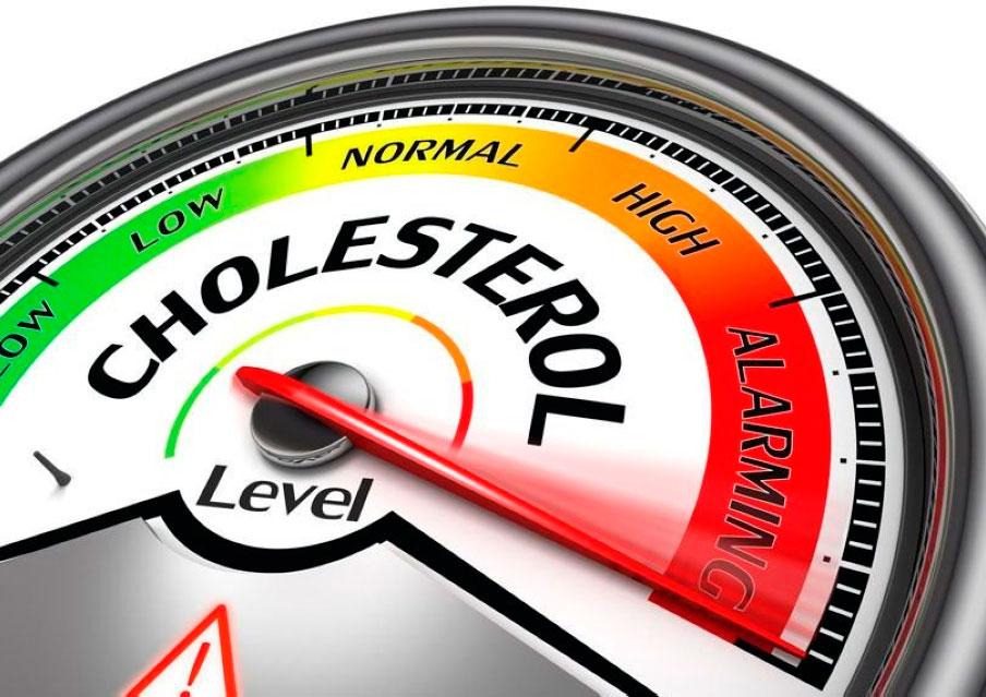 Повышенный индекс холестерина приводит к формированию атеросклеротических бляшек