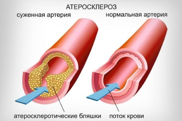 Атероматозные бляшки